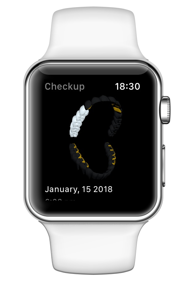 iwatch-checkup.png